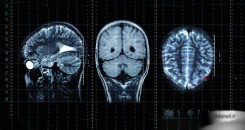 پورنوگرافی با اندازه مغز چه ارتباطی دارد؟